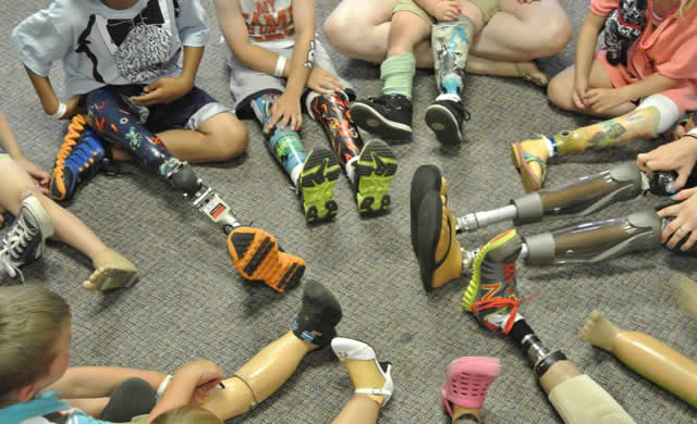 Photo: Prosthetic limbs of children seated in a circle (only limbs are shown).